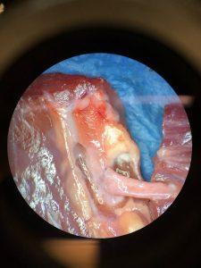 Wahlpflichtfach: Mikrochirurgie 13
